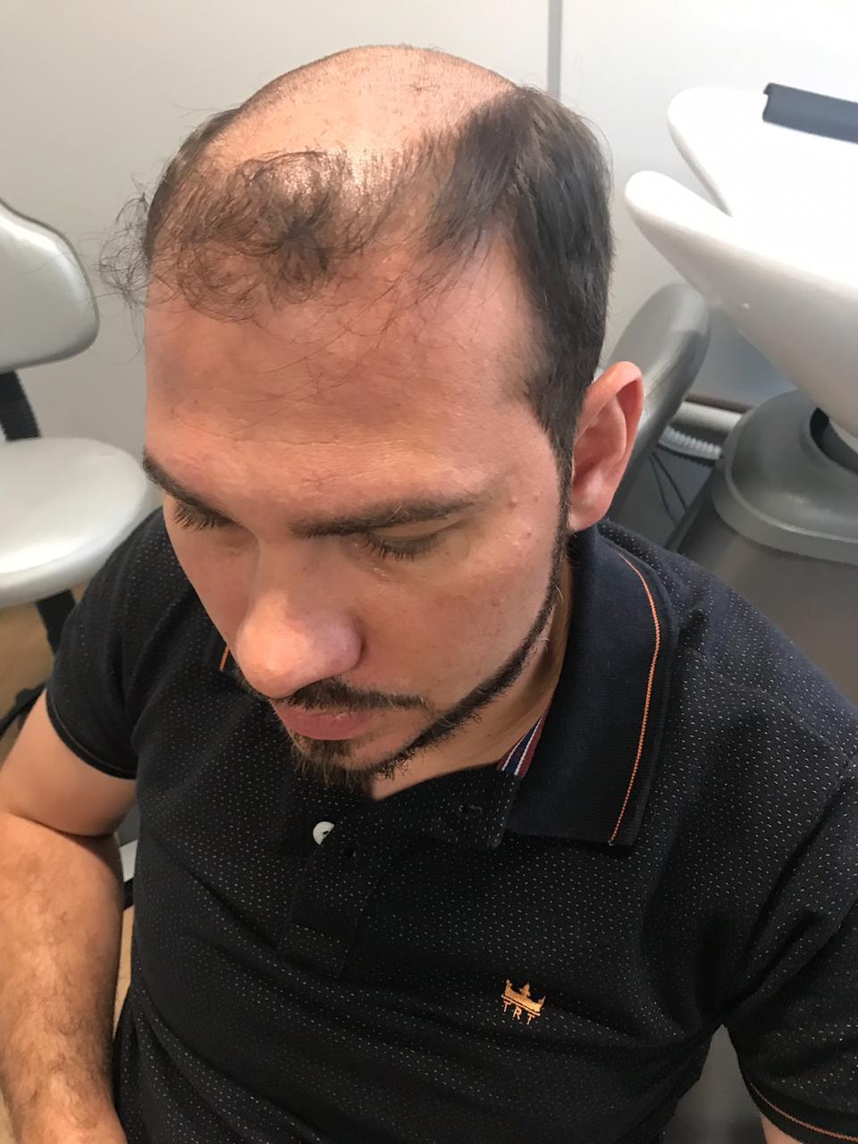 Homem antes do tratamento