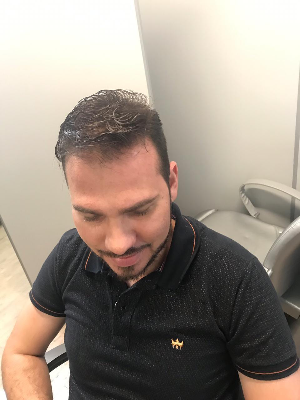 Homem após tratamento