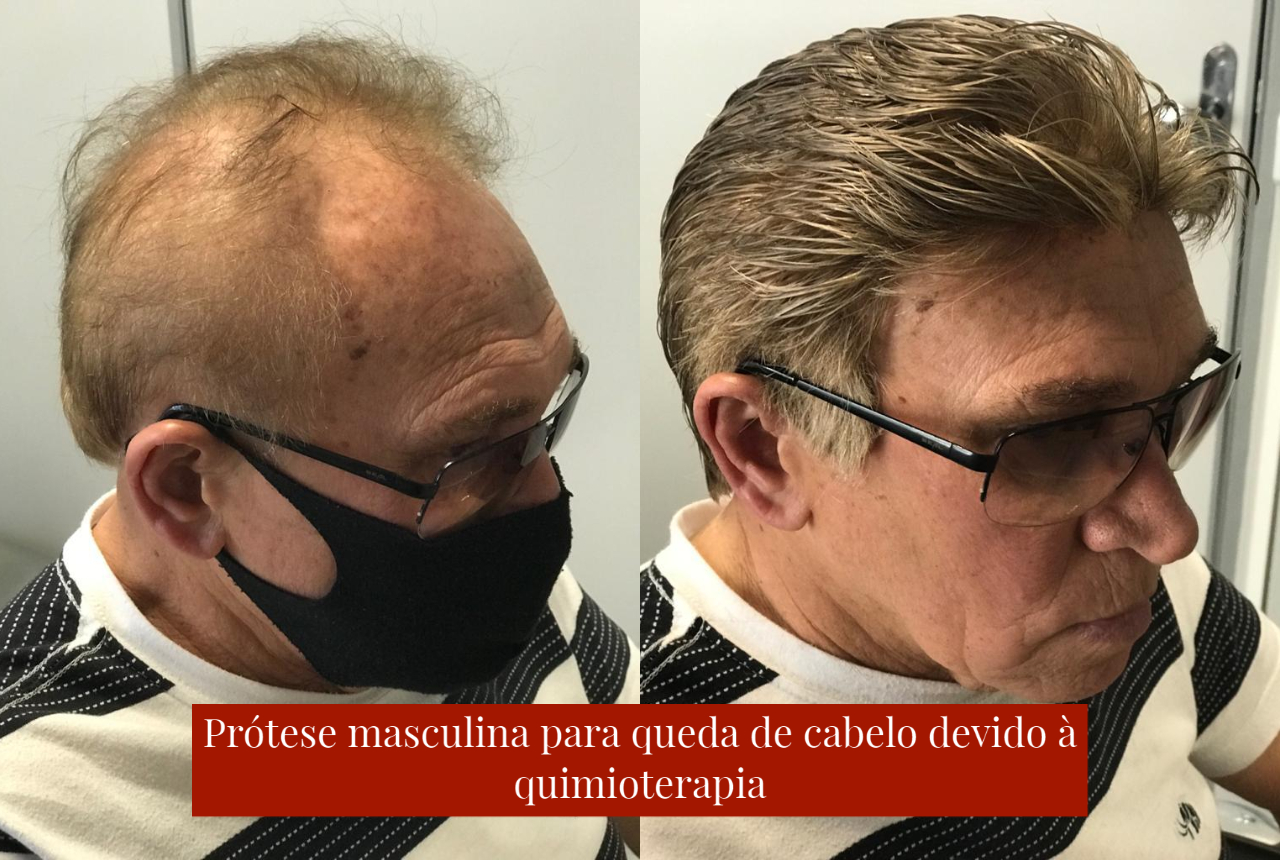 prótese capilar masculina